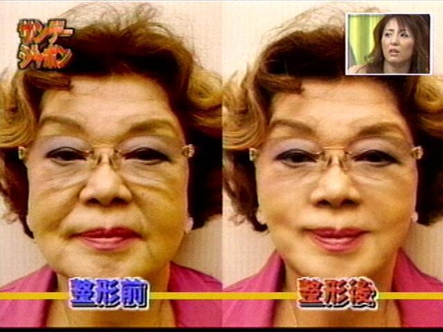 芸能人たちの整形画像50選!整形前と整形後の画像を比較!失敗・劣化のパターンも…のサムネイル画像