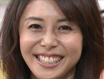 松嶋菜々子の整形疑惑&現在の劣化を調査!入れ歯しているって本当?のサムネイル画像