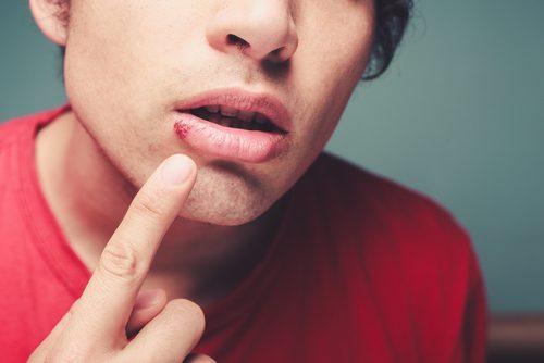 口唇ヘルペスは薬で早期治療!原因と症状、治療法について紹介します!のサムネイル画像