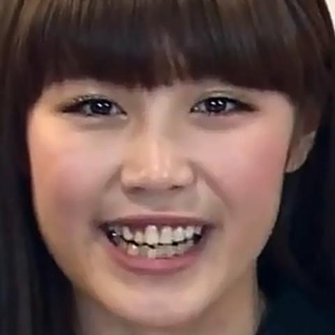 【E,girls】鷲尾伶菜が歯並び矯正してきれいになった