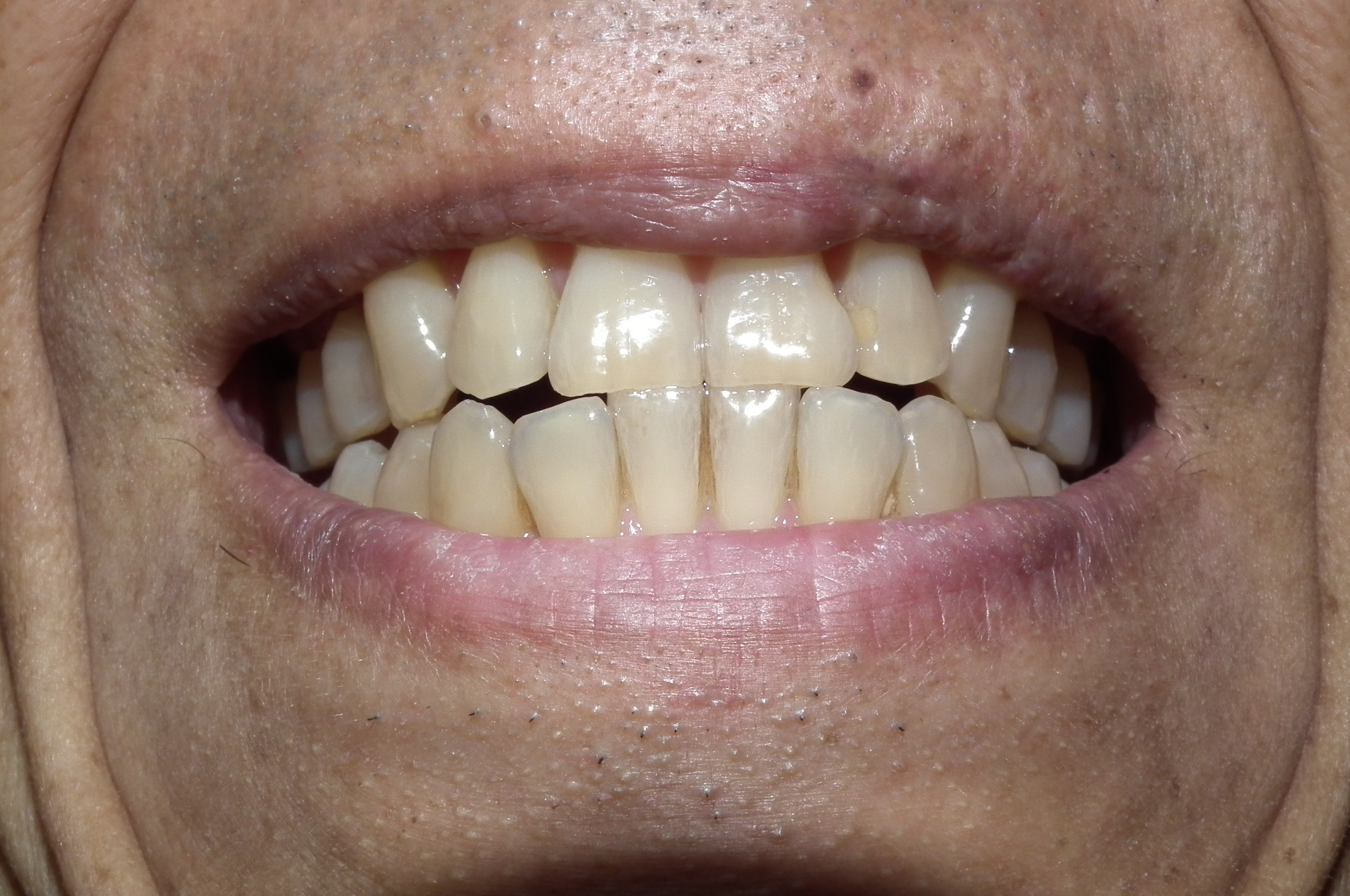 リステリンの効果と使い方まとめ!痛い口内炎や口臭予防におすすめ!のサムネイル画像