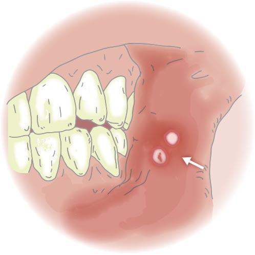 口内炎にはビタミンBが効く?治らない舌や歯茎など部位別で抑える方法のサムネイル画像