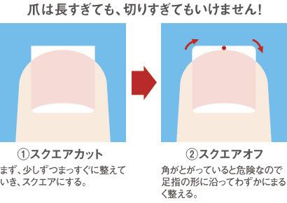 足の爪・巻き爪の正しい切り方!痛いのは長さに原因があった?【画像あり】のサムネイル画像