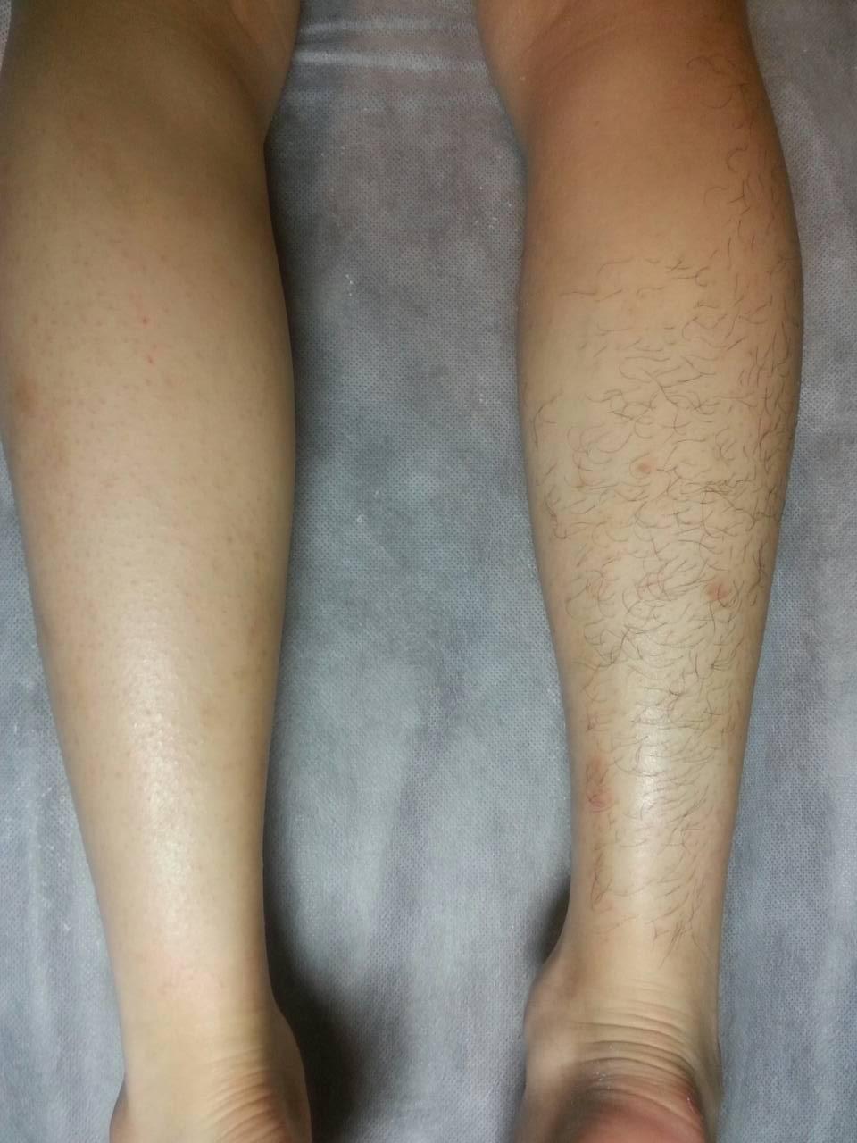 【ブラジリアンワックス】男性・メンズが脱毛して大丈夫?正しいやり方とコツを紹介のサムネイル画像