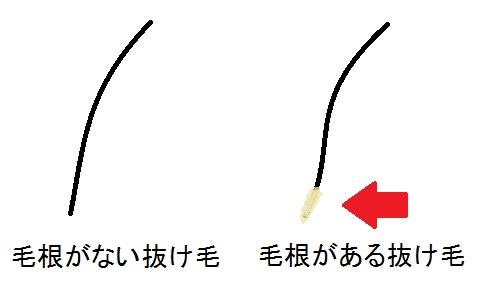 髪が伸びるのが早い人と遅い人の違いは?性欲が強いというのは本当?のサムネイル画像