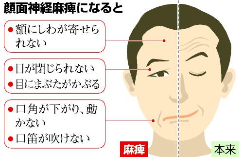 ビートたけし、バイク事故の真相!顔面麻痺の後遺症は?現場写真ありのサムネイル画像
