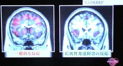 悠仁さまは発達障害?病気?耳の補聴器の原因を調査【画像あり】のサムネイル画像