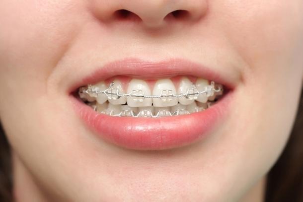 歯ぎしりの原因は睡眠の質が問題?ストレスも歯ぎしりの理由になるのか調べてみたのサムネイル画像