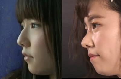 ぱるる(島崎遥香)の鼻に整形疑惑!顔が変わったと話題